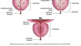 Problémy s prostatou vyřeší Rezūm