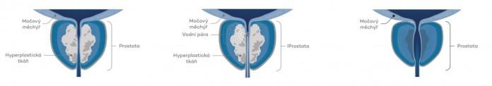 Vákuum a prosztatitis kezelésében
